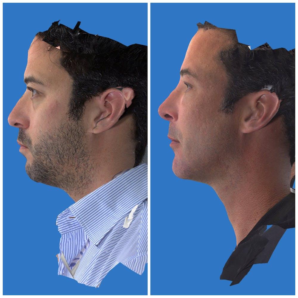 Aesthetic Facial Balancing Gallery - Patient 11681597 - Image 3