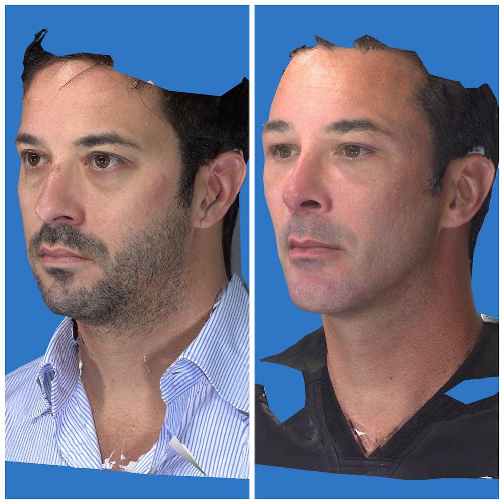 Aesthetic Facial Balancing Gallery - Patient 11681597 - Image 2