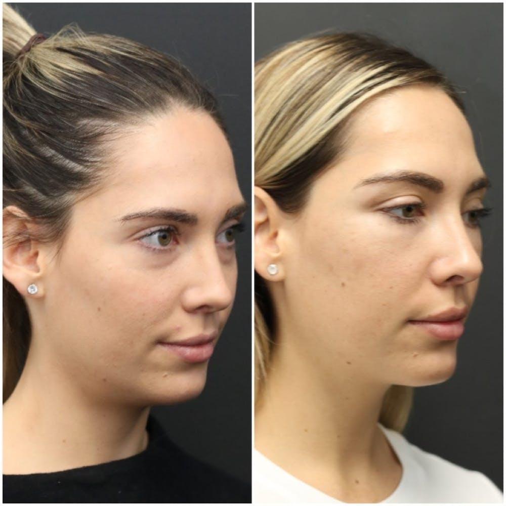 Aesthetic Facial Balancing Gallery - Patient 11681599 - Image 2