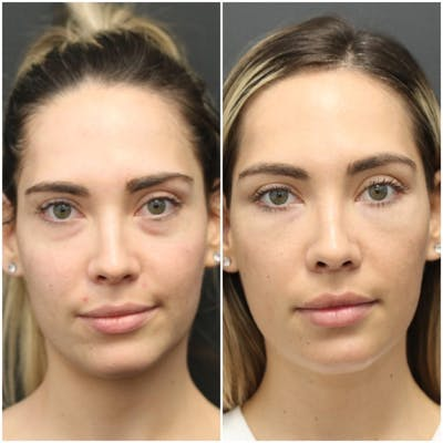 Aesthetic Facial Balancing Gallery - Patient 11681599 - Image 1
