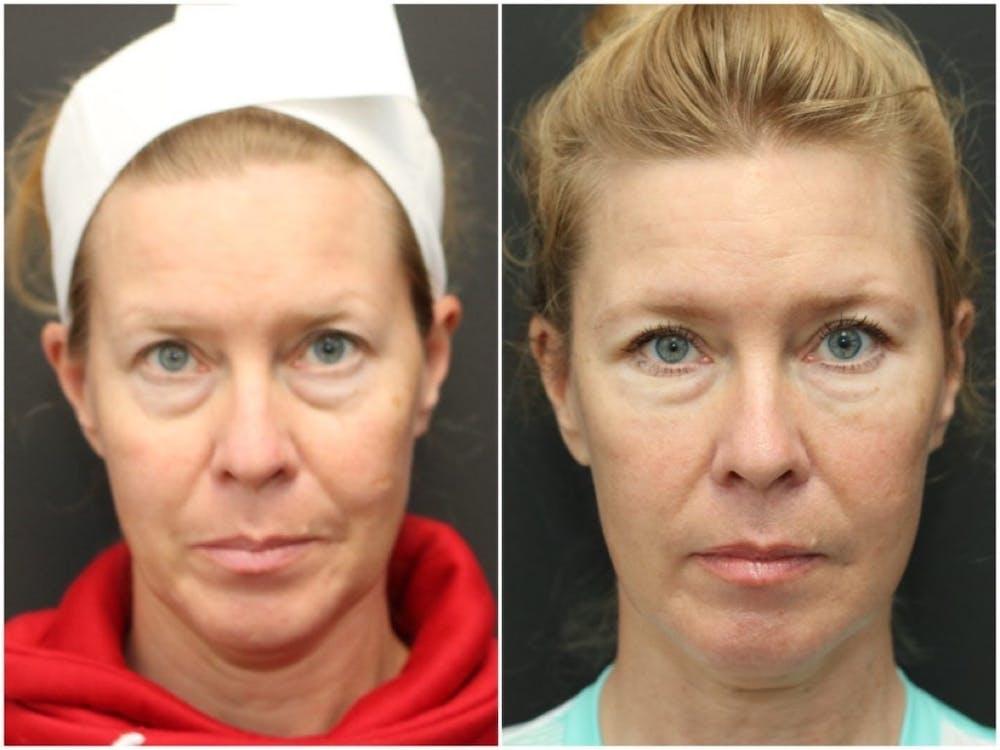 Aesthetic Facial Balancing Gallery - Patient 11681601 - Image 1