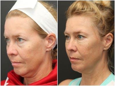 Aesthetic Facial Balancing Gallery - Patient 11681601 - Image 2