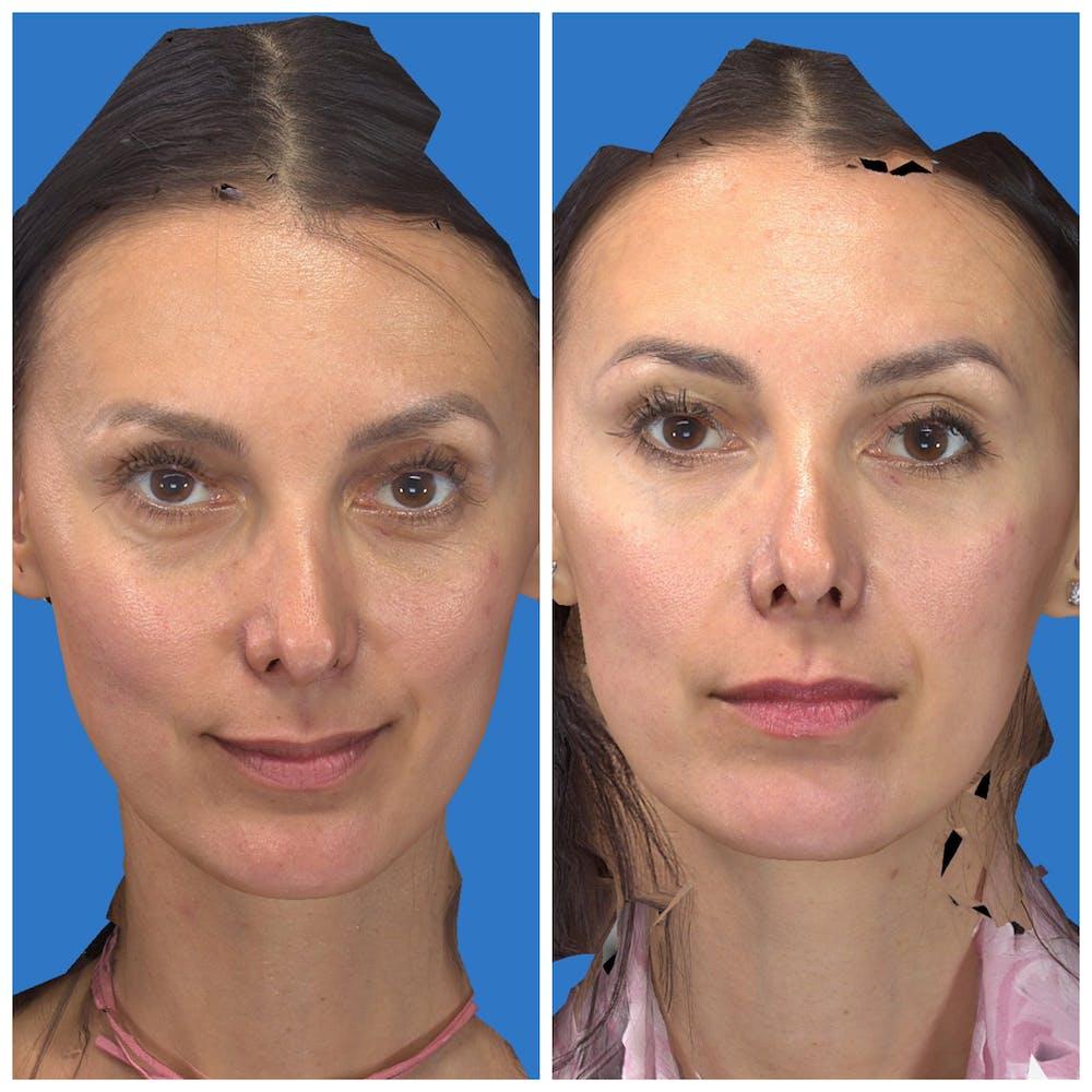 Aesthetic Facial Balancing Gallery - Patient 11681602 - Image 1