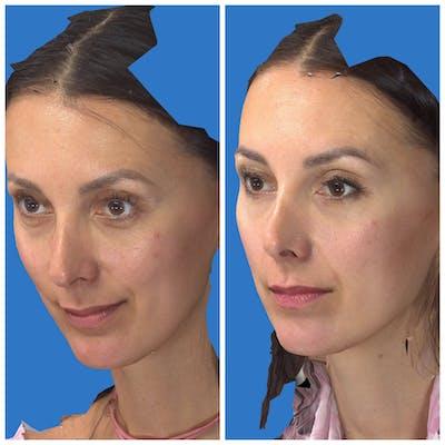 Aesthetic Facial Balancing Gallery - Patient 11681602 - Image 2
