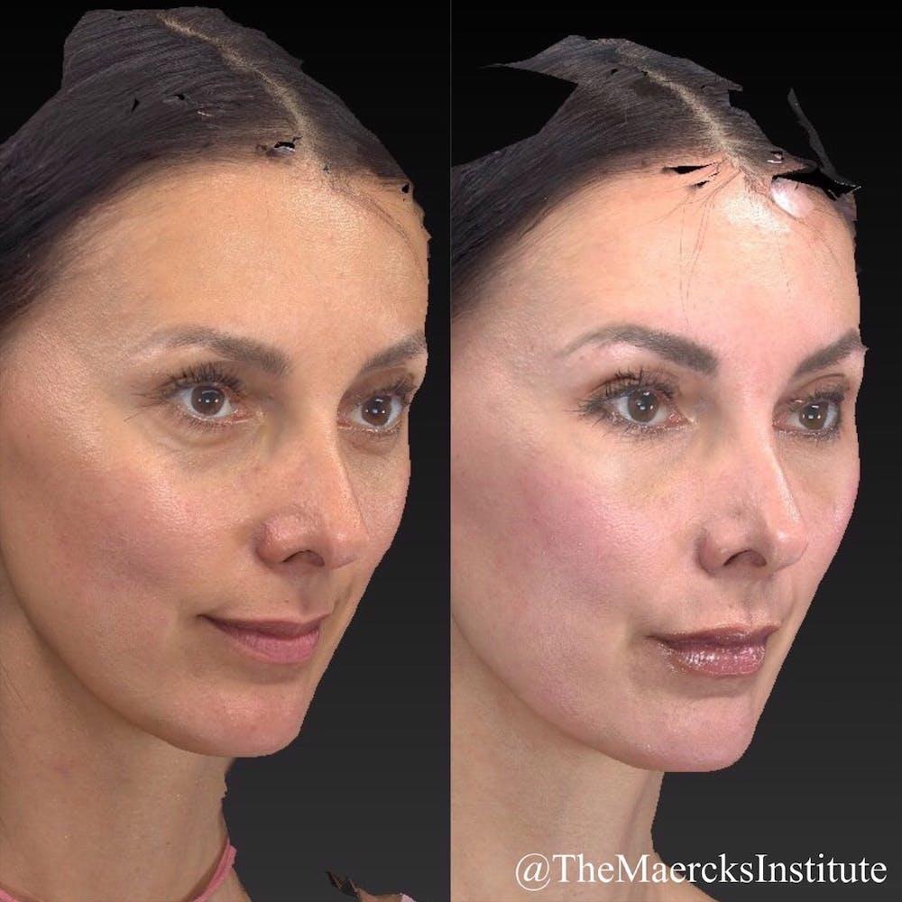 Aesthetic Facial Balancing Gallery - Patient 11681602 - Image 4