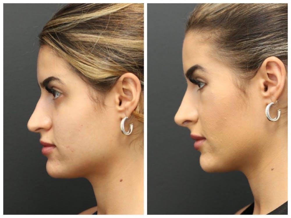 Aesthetic Facial Balancing Gallery - Patient 11681603 - Image 2