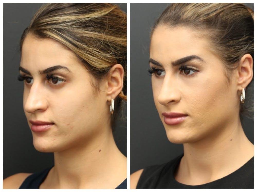 Aesthetic Facial Balancing Gallery - Patient 11681603 - Image 1