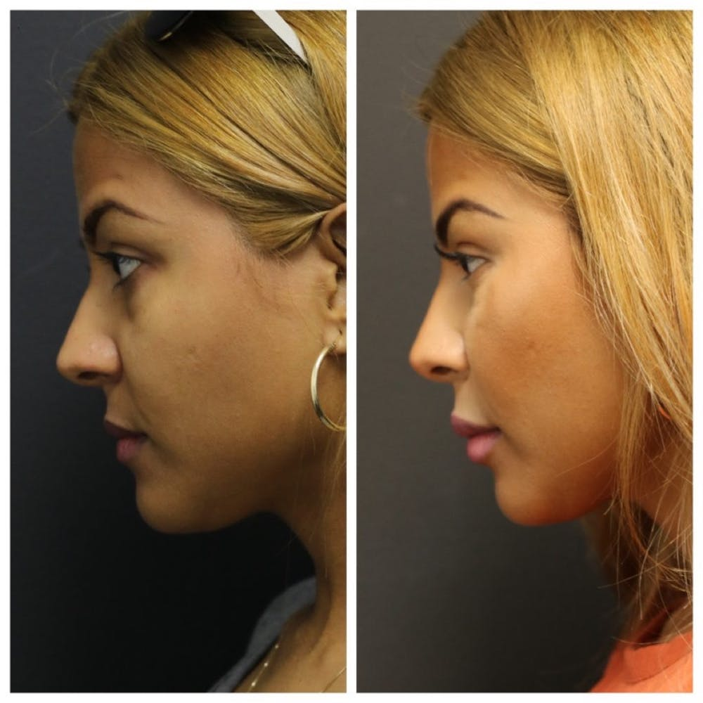Aesthetic Facial Balancing Gallery - Patient 11681604 - Image 3