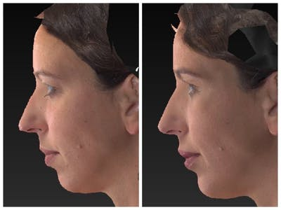 Aesthetic Facial Balancing Gallery - Patient 11681605 - Image 1