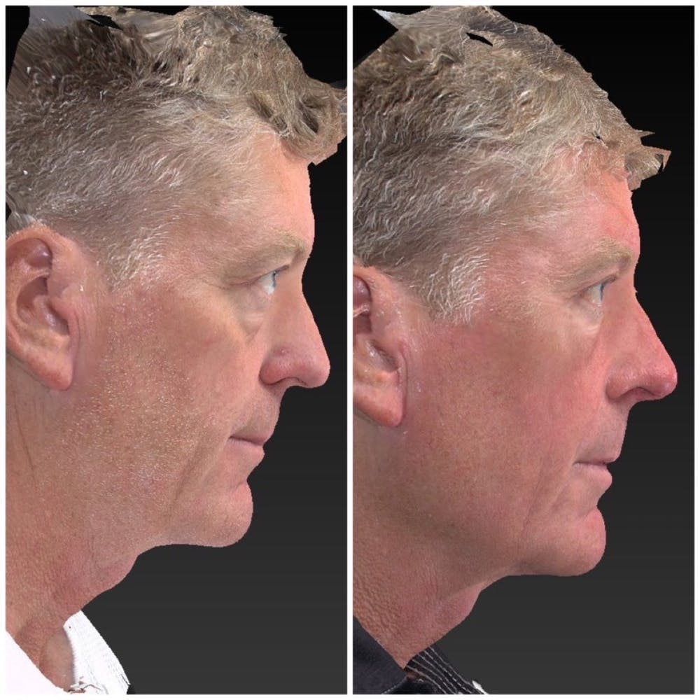 Aesthetic Facial Balancing Gallery - Patient 11681606 - Image 3