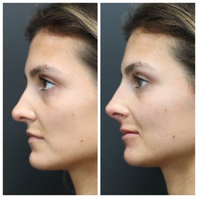 Aesthetic Facial Balancing Gallery - Patient 11681607 - Image 1
