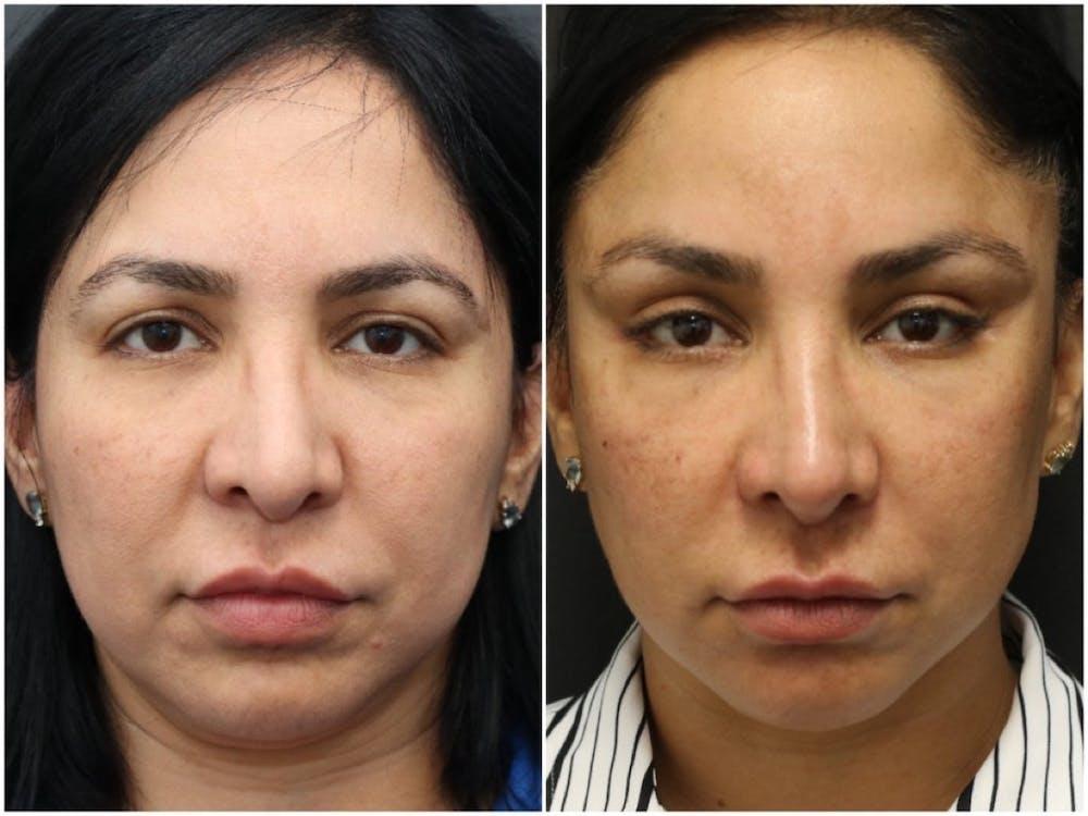 Aesthetic Facial Balancing Gallery - Patient 11681608 - Image 1