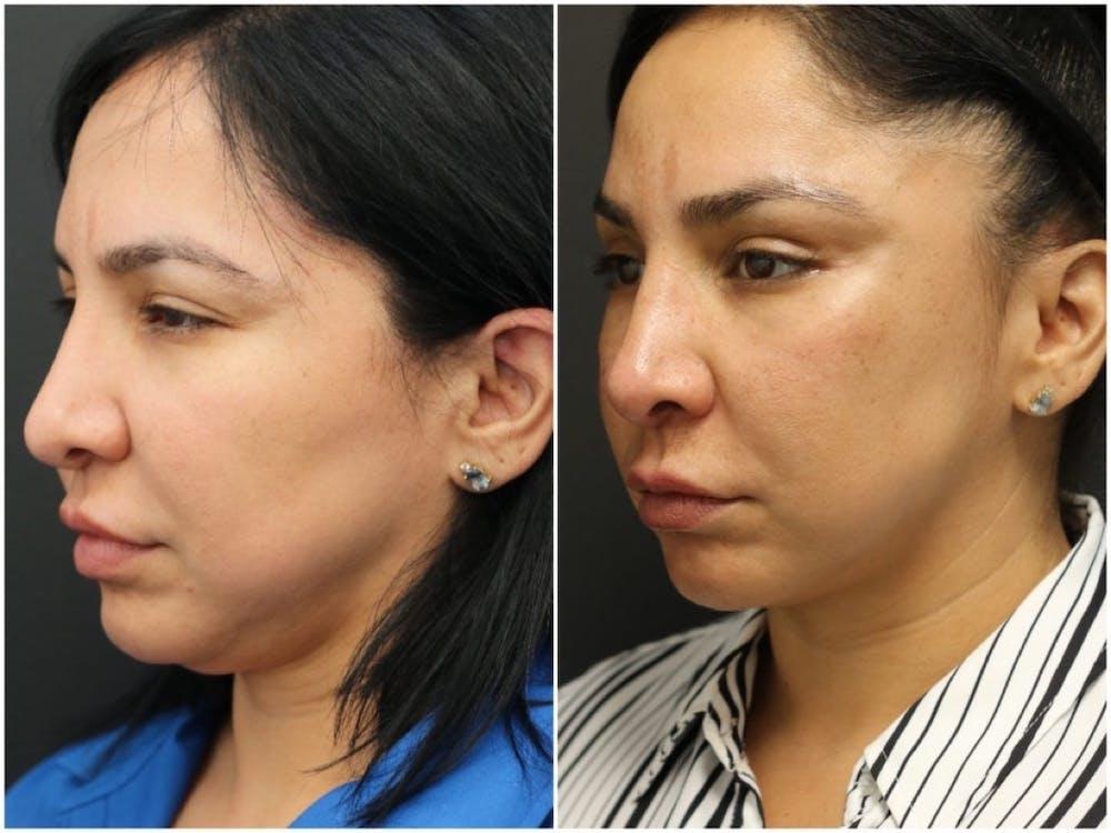 Aesthetic Facial Balancing Gallery - Patient 11681608 - Image 2