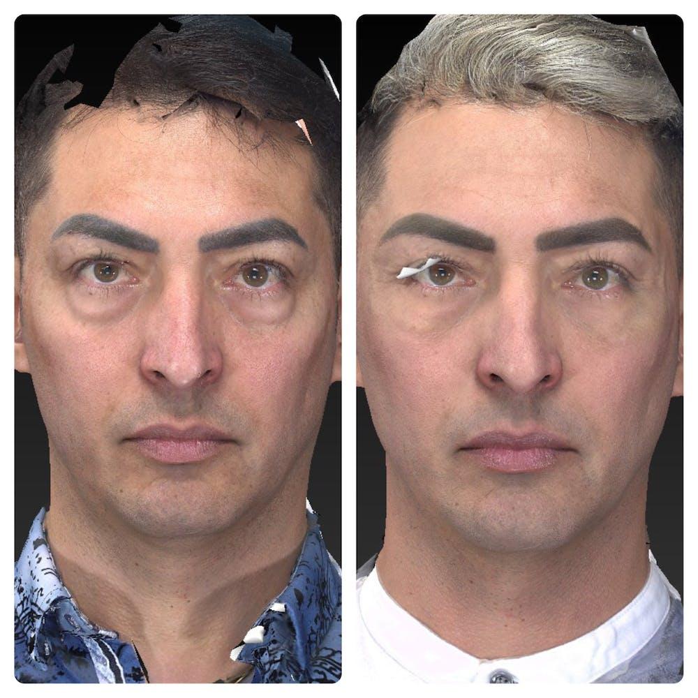 Aesthetic Facial Balancing Gallery - Patient 11681609 - Image 1