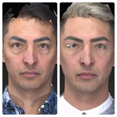 Aesthetic Facial Balancing Gallery - Patient 11681609 - Image 1