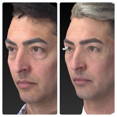 Aesthetic Facial Balancing Gallery - Patient 11681609 - Image 2