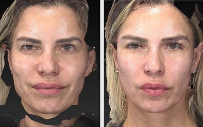 Aesthetic Facial Balancing Gallery - Patient 11681610 - Image 1