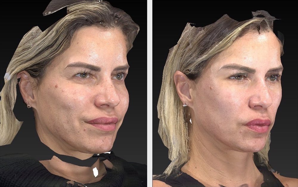 Aesthetic Facial Balancing Gallery - Patient 11681610 - Image 2