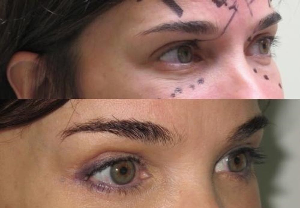 Eyelid Surgery Gallery - Patient 11681628 - Image 2