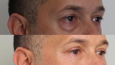 Eyelid Surgery Gallery - Patient 11681629 - Image 2