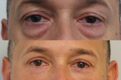 Eyelid Surgery Gallery - Patient 11681629 - Image 1