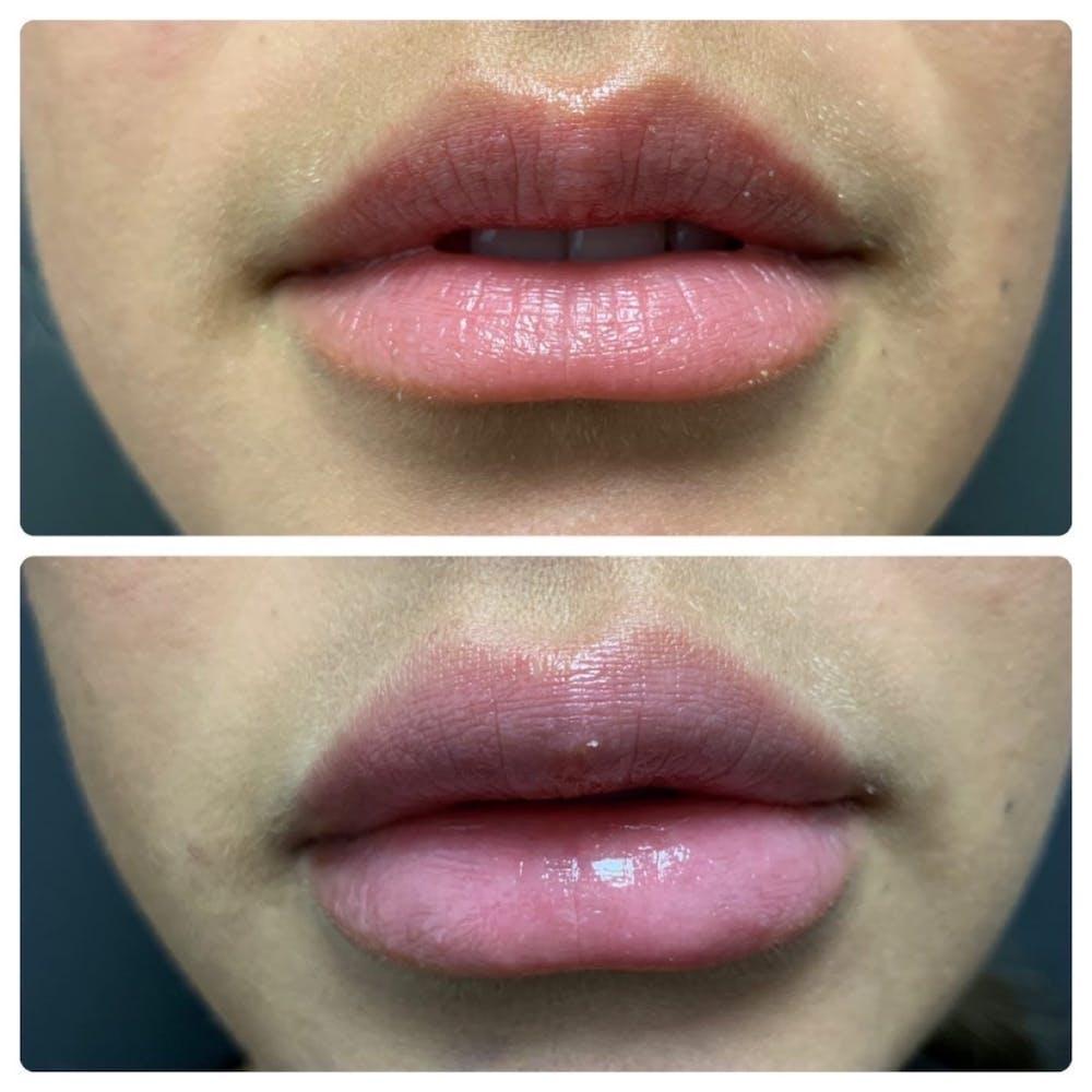 Lip Augmentation Gallery - Patient 11681654 - Image 1