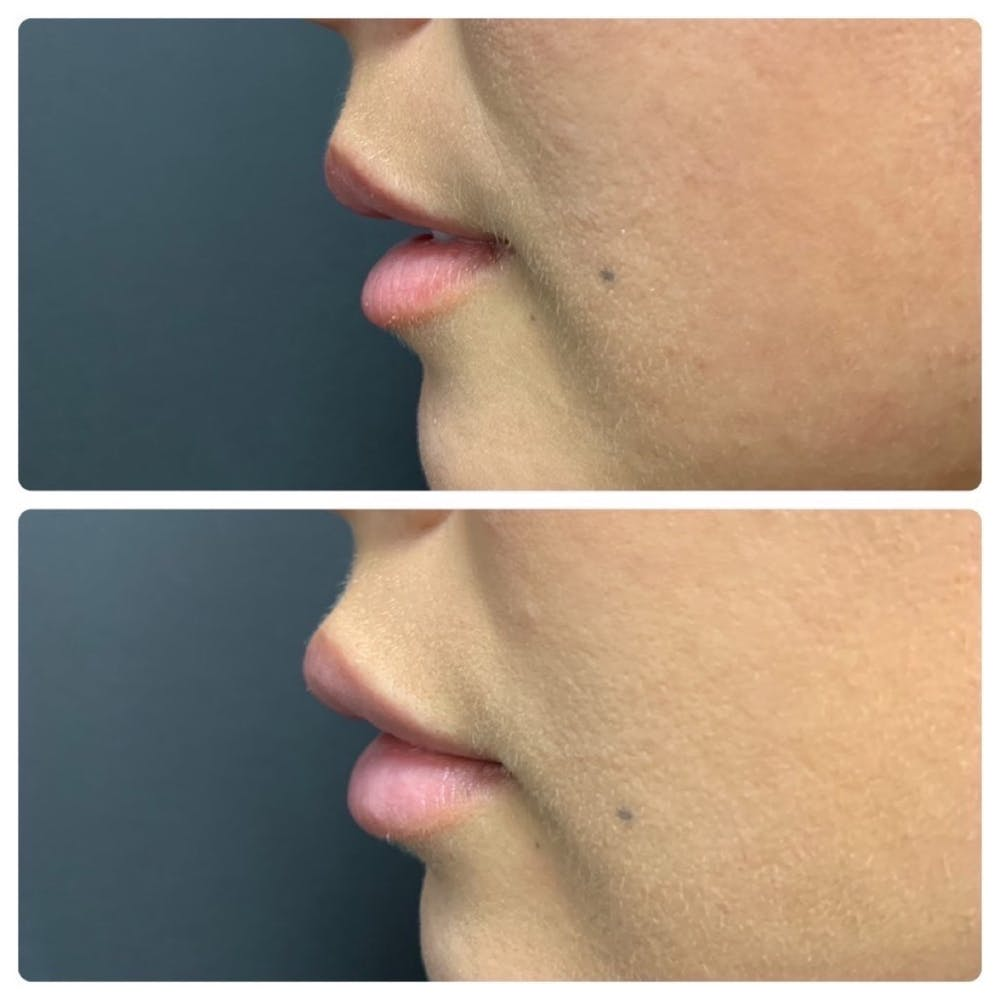 Lip Augmentation Gallery - Patient 11681654 - Image 2