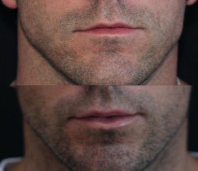 Lip Augmentation Gallery - Patient 11681655 - Image 1