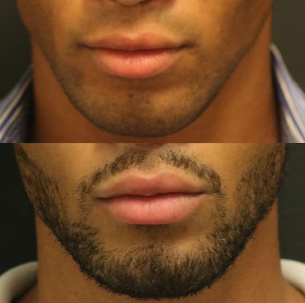 Lip Augmentation Gallery - Patient 11681656 - Image 1