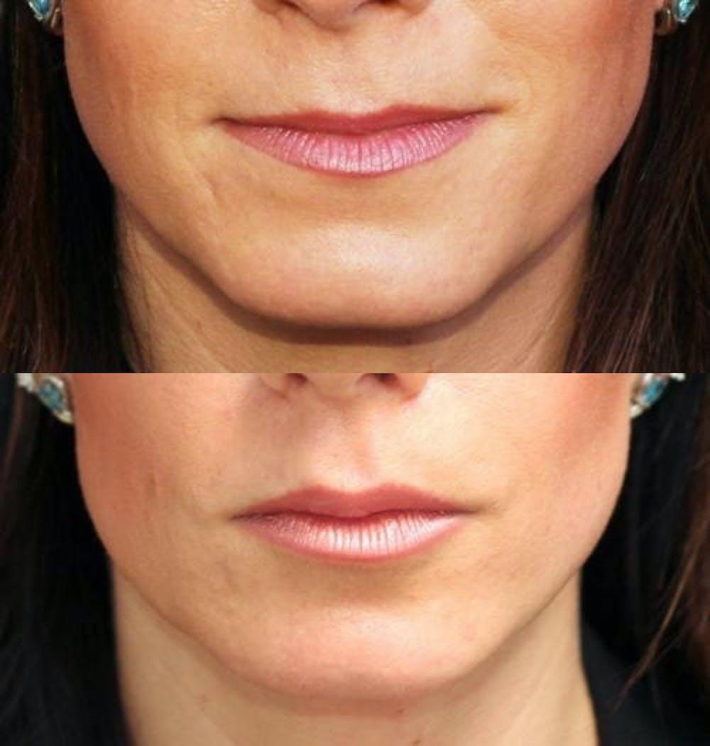 Lip Augmentation Gallery - Patient 11681657 - Image 1