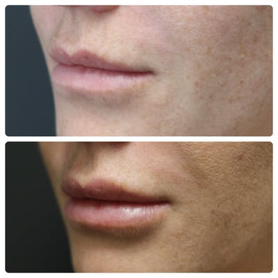 Lip Augmentation Gallery - Patient 11681658 - Image 1