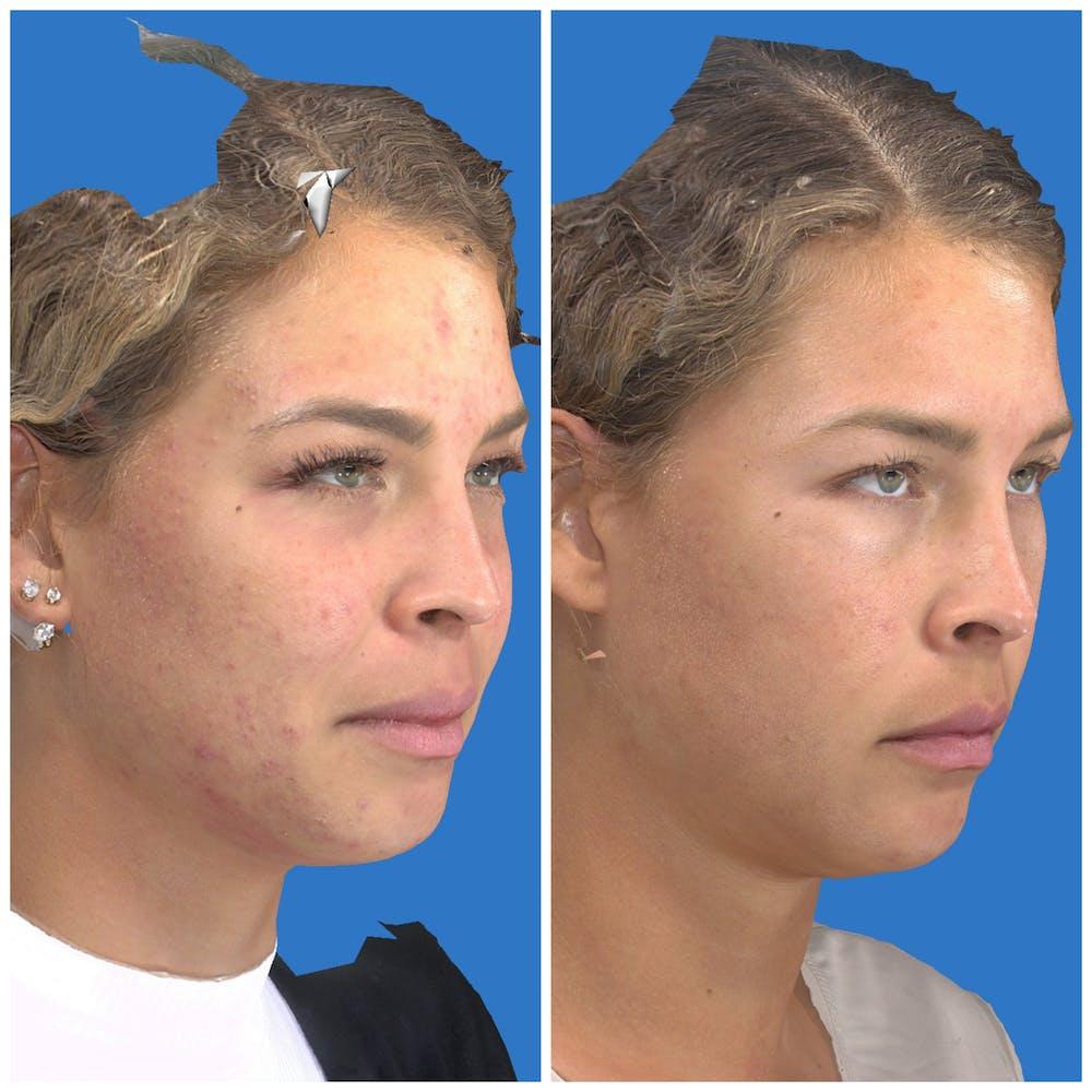 Photo Facial Gallery - Patient 11681661 - Image 2
