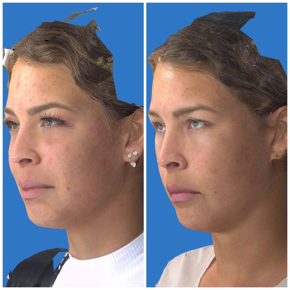 Photo Facial Gallery - Patient 11681661 - Image 3