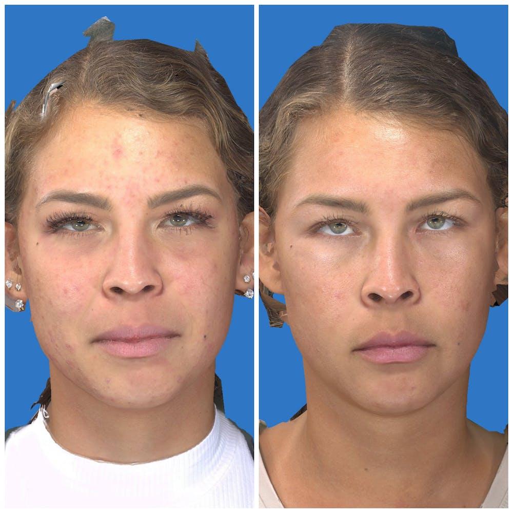 Photo Facial Gallery - Patient 11681661 - Image 1