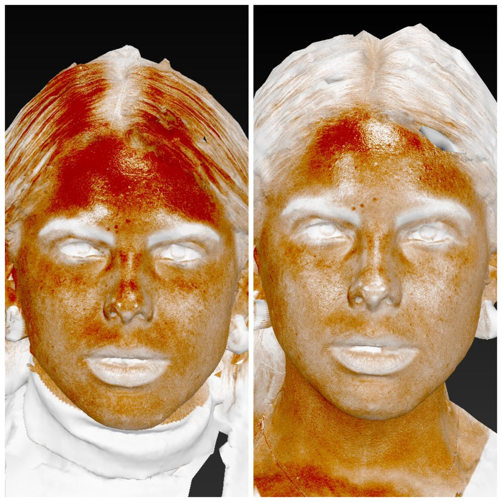 Photo Facial Gallery - Patient 11681662 - Image 1