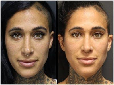 Photo Facial Gallery - Patient 11681663 - Image 1