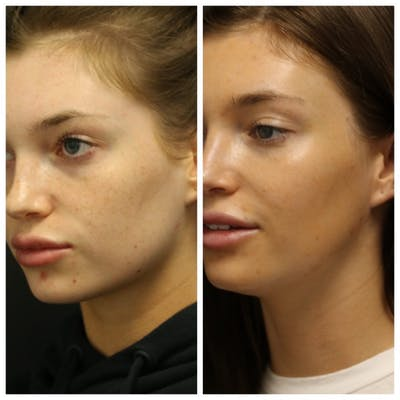 Photo Facial Gallery - Patient 11681664 - Image 2