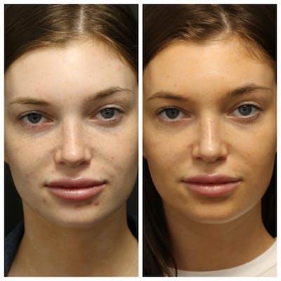 Photo Facial Gallery - Patient 11681664 - Image 1