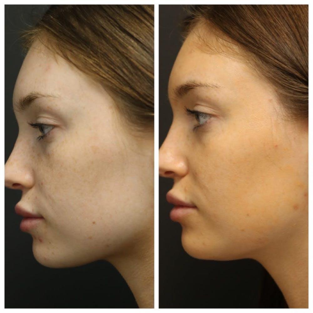 Photo Facial Gallery - Patient 11681664 - Image 3