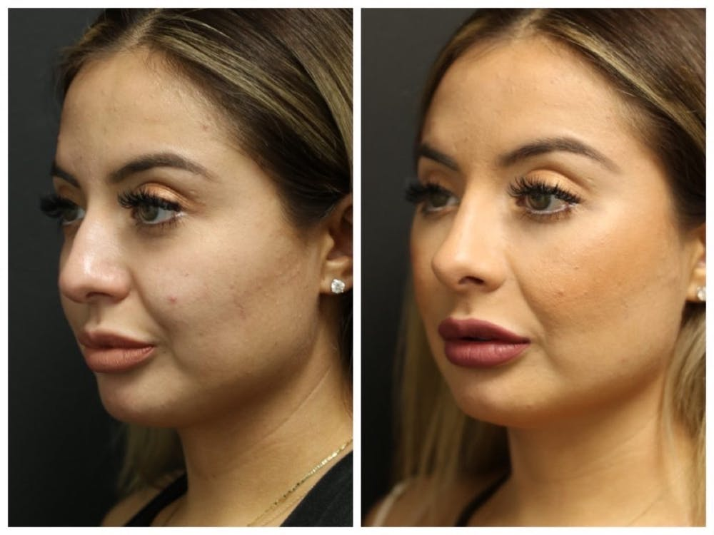 Rhinoplasty Gallery - Patient 11681677 - Image 1