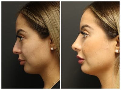 Rhinoplasty Gallery - Patient 11681677 - Image 2