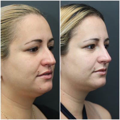 Rhinoplasty Gallery - Patient 11681678 - Image 1