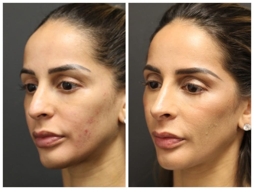Rhinoplasty Gallery - Patient 11681679 - Image 1
