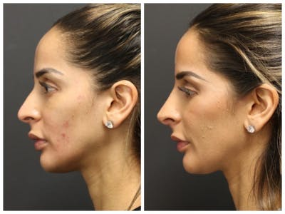 Rhinoplasty Gallery - Patient 11681679 - Image 2