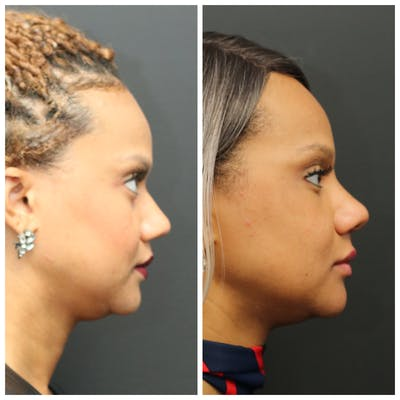Rhinoplasty Gallery - Patient 11681683 - Image 1