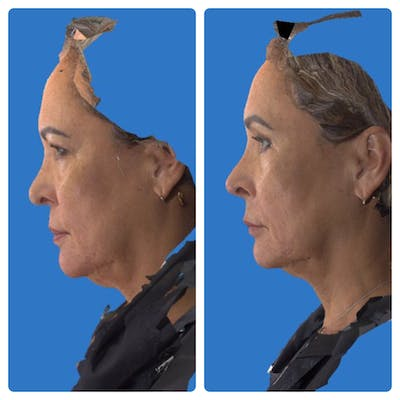 Rhinoplasty Gallery - Patient 11681684 - Image 1