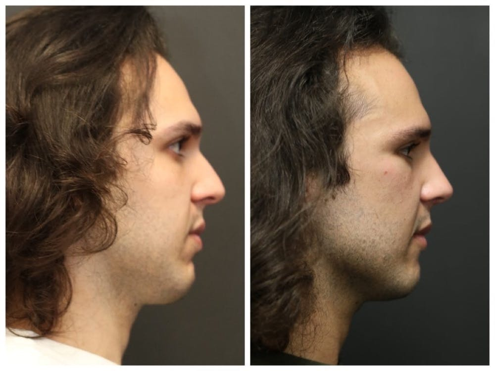Rhinoplasty Gallery - Patient 11681685 - Image 3