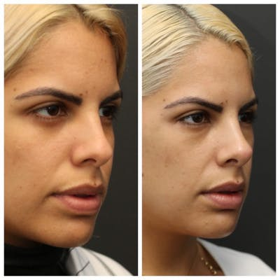 Rhinoplasty Gallery - Patient 11681686 - Image 1