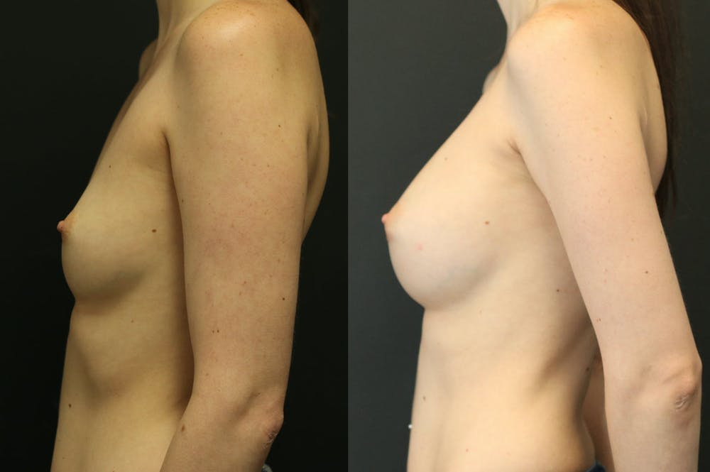 Breast Augmentation Gallery - Patient 11681775 - Image 4