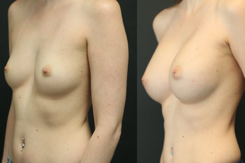 Breast Augmentation Gallery - Patient 11681775 - Image 3